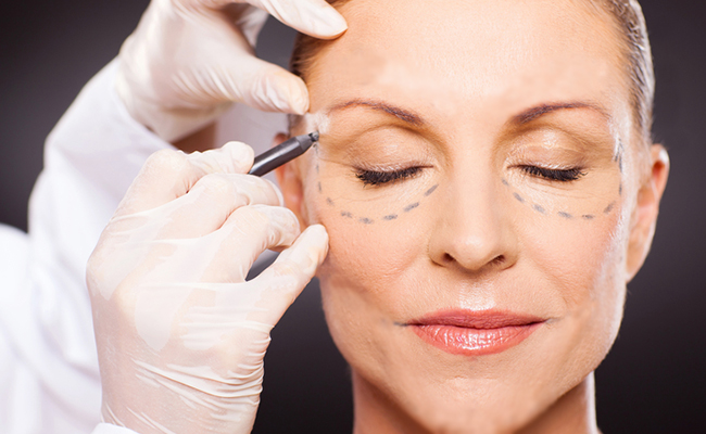 The reasons patients from Aliso Viejo and surrounding areas may need pterygium surgery