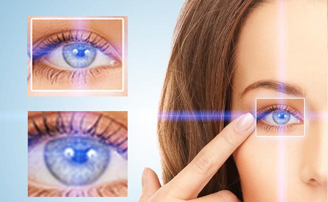 Open Angle Glaucoma in Laguna Hills