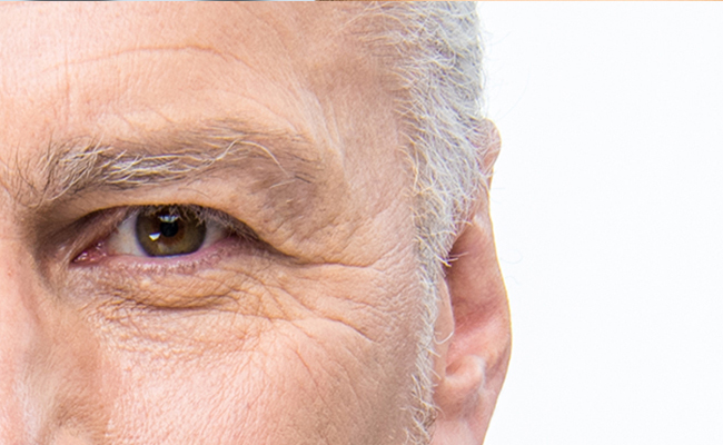 Opthalmologist in Laguna Hills California discusses how to avoid aging your eyes