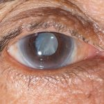 Discussing treatment options for dry eyes is important for our Laguna Hills, CA patients