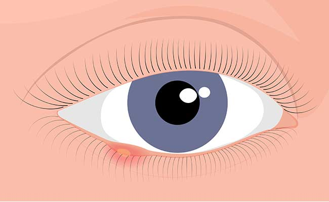 Cataract Procedures Lasik Dry Eye Center Retina Procedures Eye Procedures About - Patient Forms Doctor Portal Ophthalmologist in Laguna Hills explains eye bumps and how to get rid of them