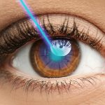 Lasik surgeon near Lake Forest, California discusses what makes you a good candidate for this procedure
